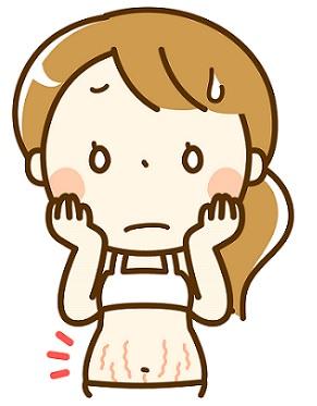 妊娠線ができた妊婦さんの画像